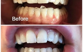Whitening behandeling Gebit